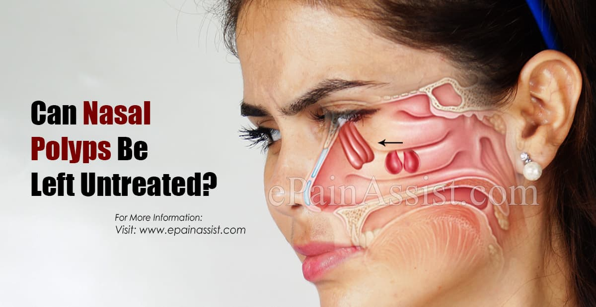 Can Nasal Polyps Be Left Untreated?