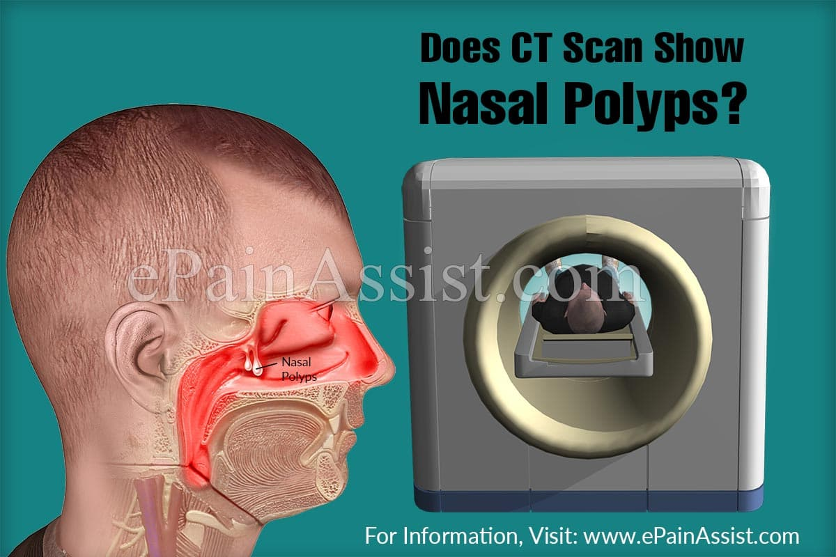 Does CT Scan Show Nasal Polyps?