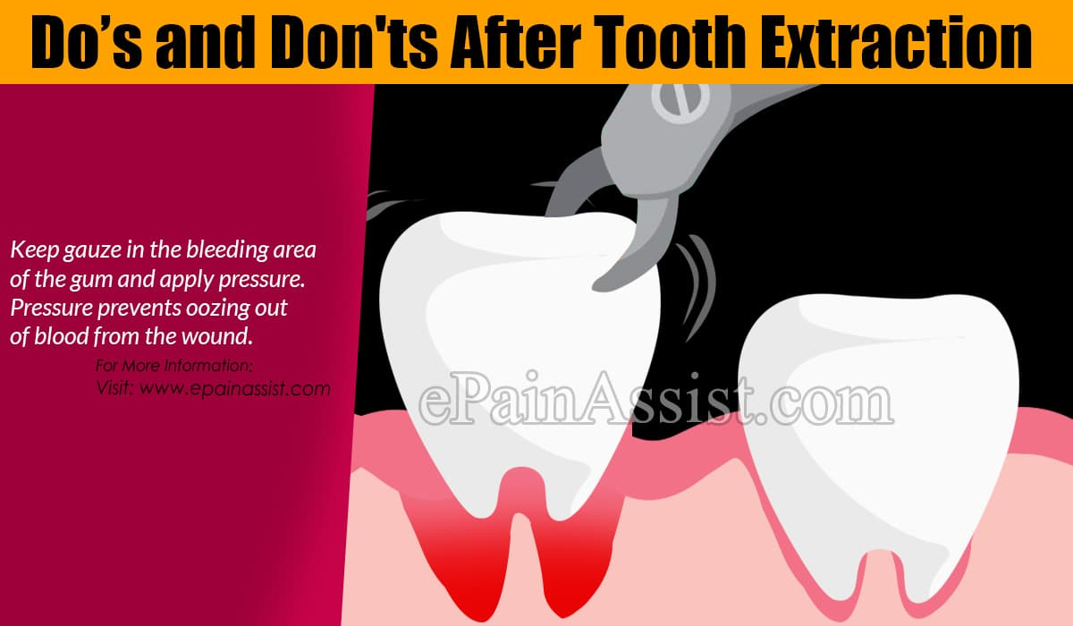 Do's and Don'ts After Tooth Extraction