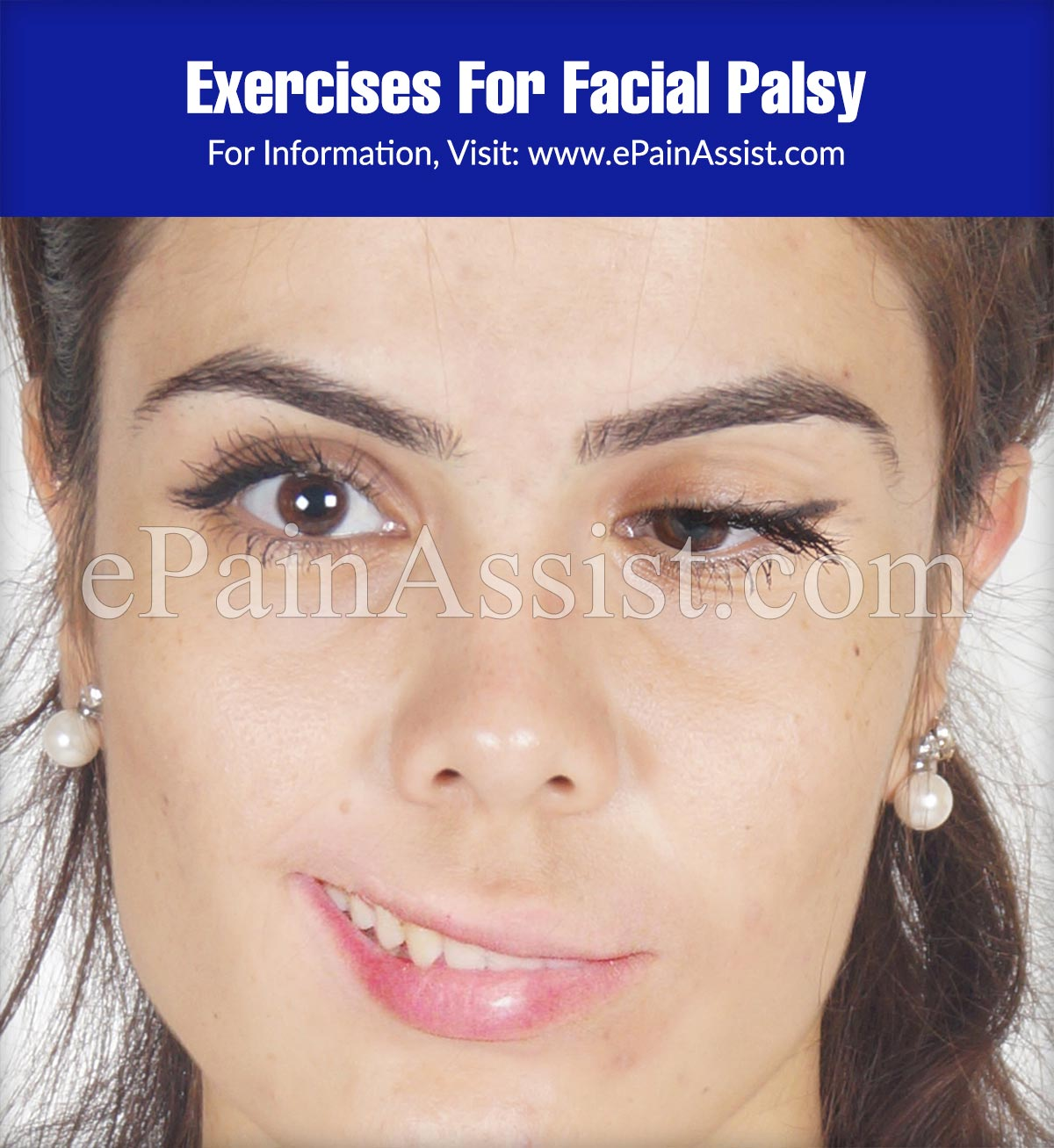 Exercises For Facial Palsy