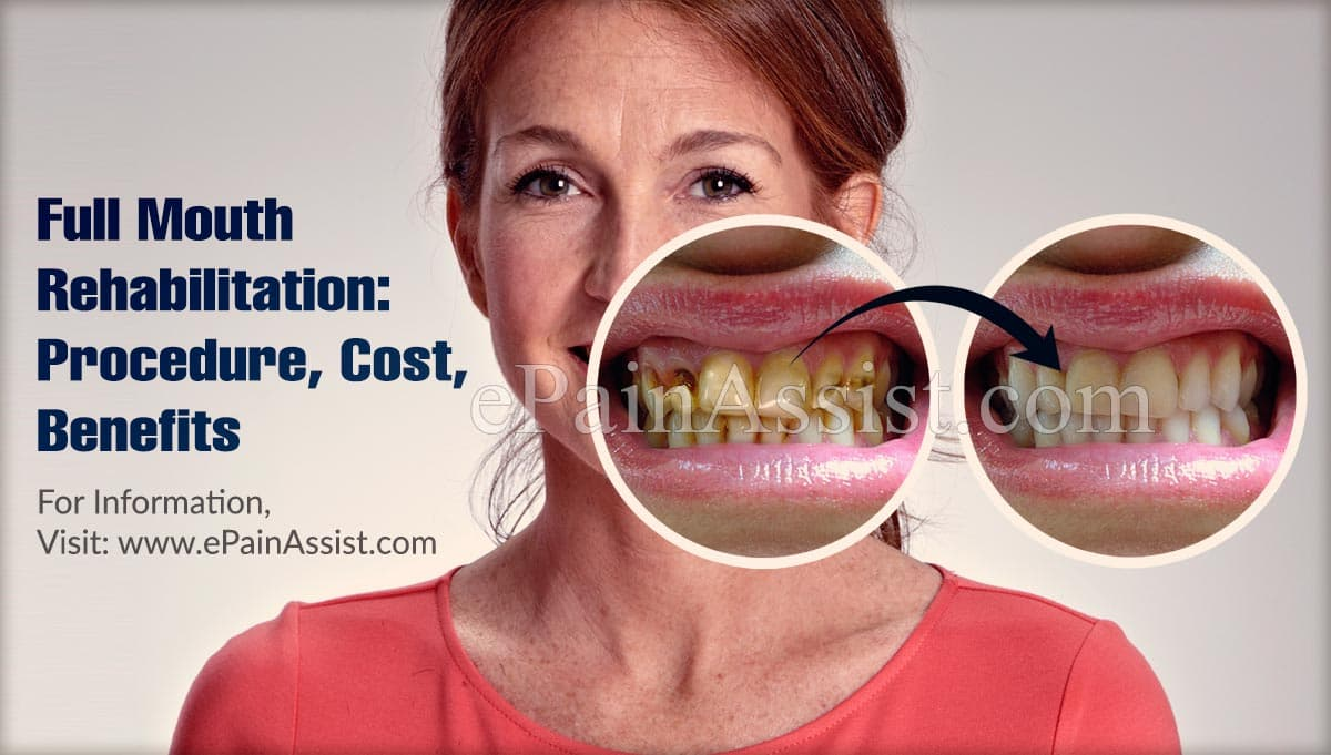 Full Mouth Rehabilitation: Procedure, Cost, Benefits