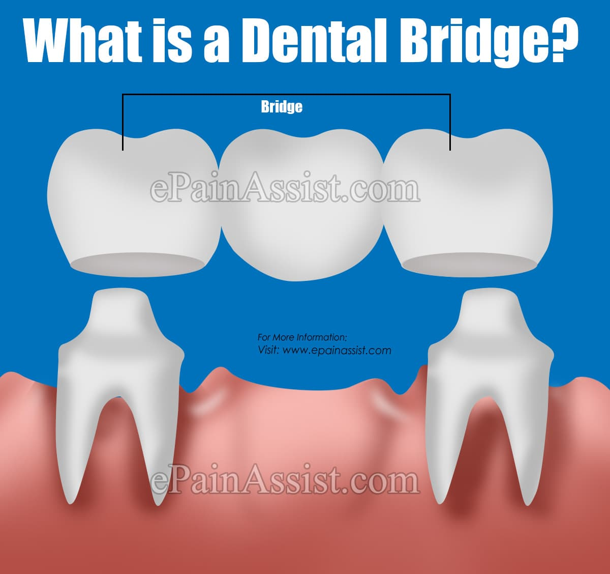 What is a Dental Bridge?