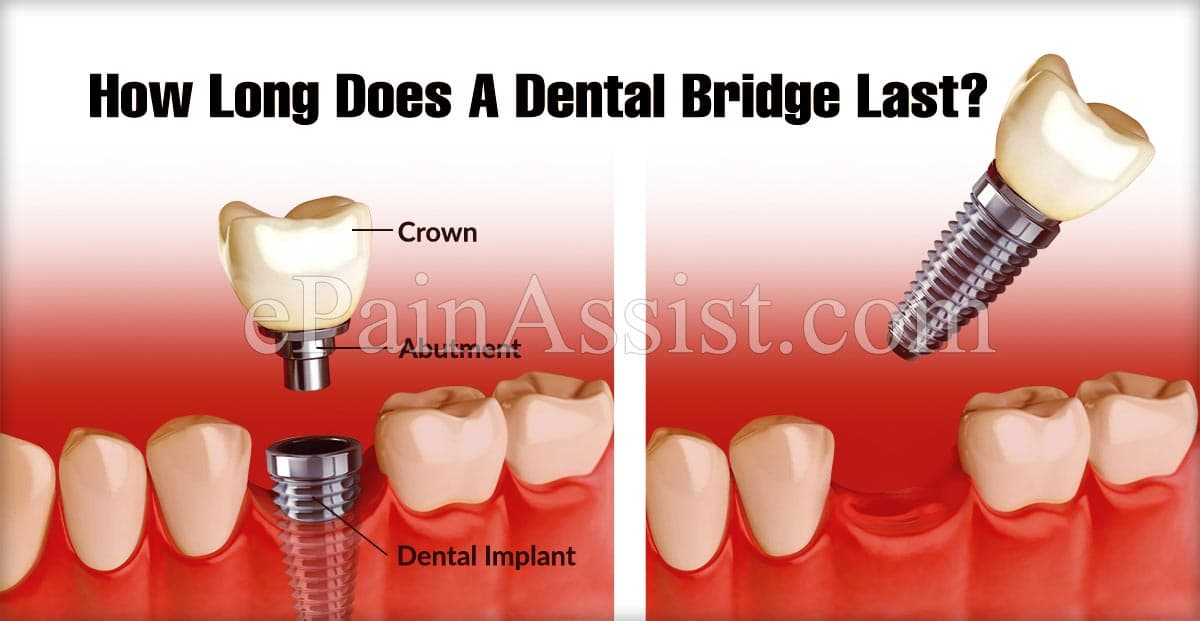 How Long Does A Dental Bridge Last?