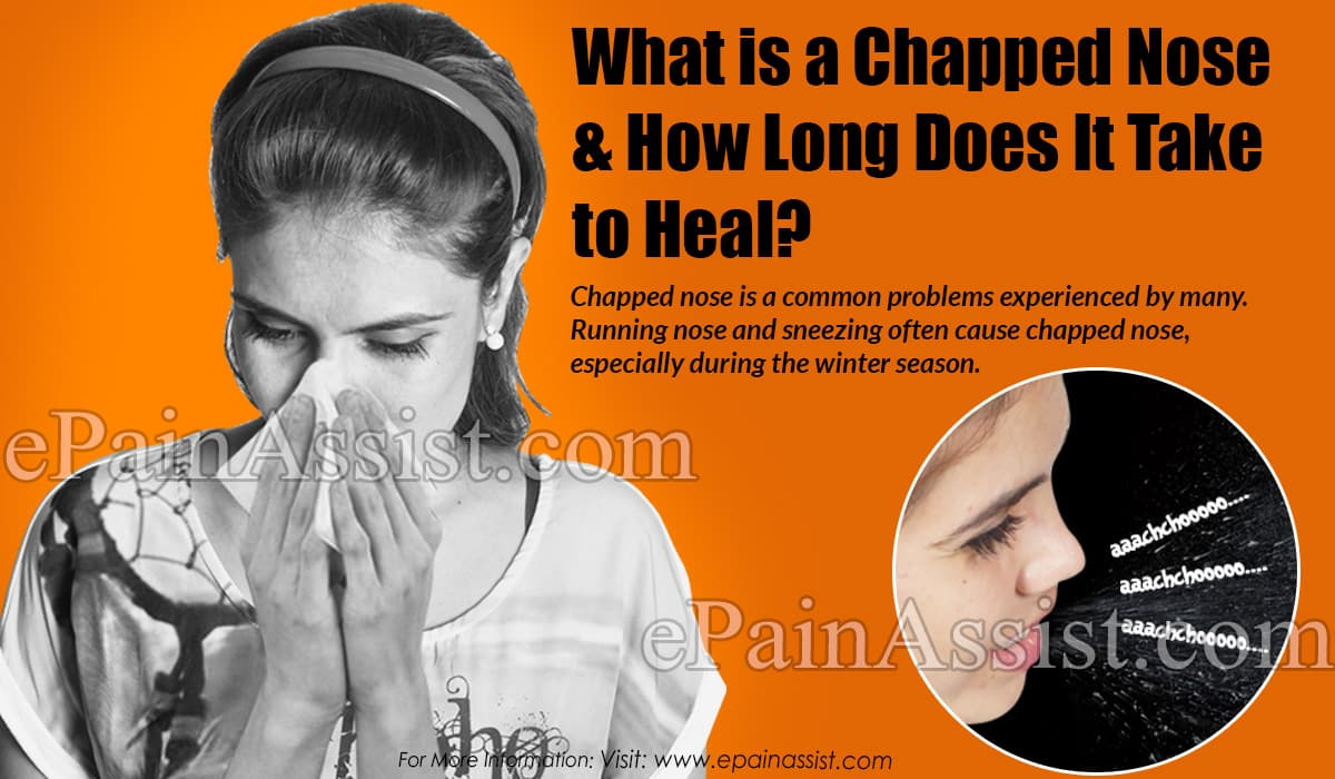 What is a Chapped Nose & How Long Does It Take to Heal?