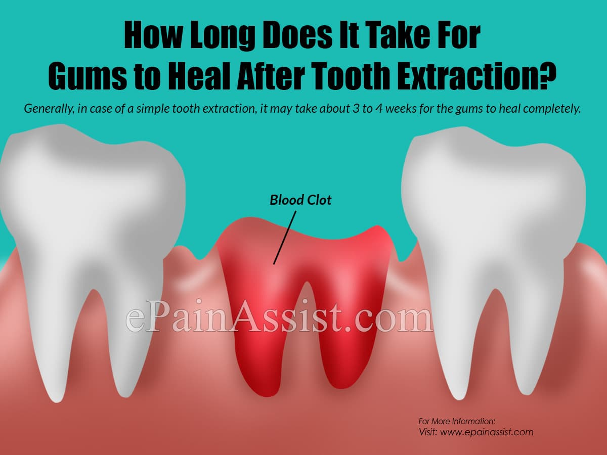 How Long Does It Bleed After Tooth Extraction?