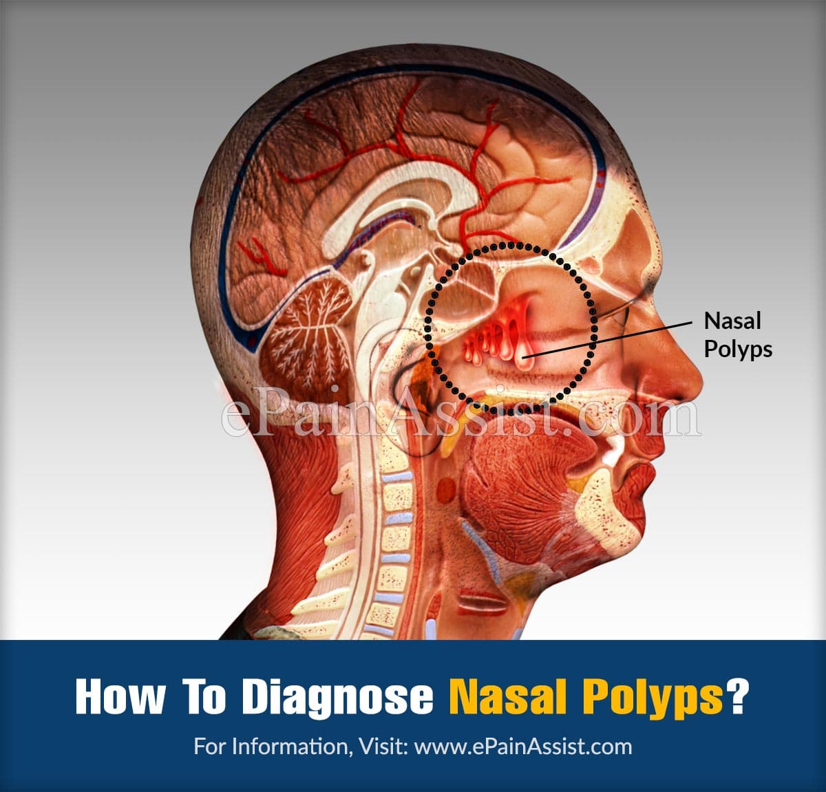 How To Diagnose Nasal Polyps?