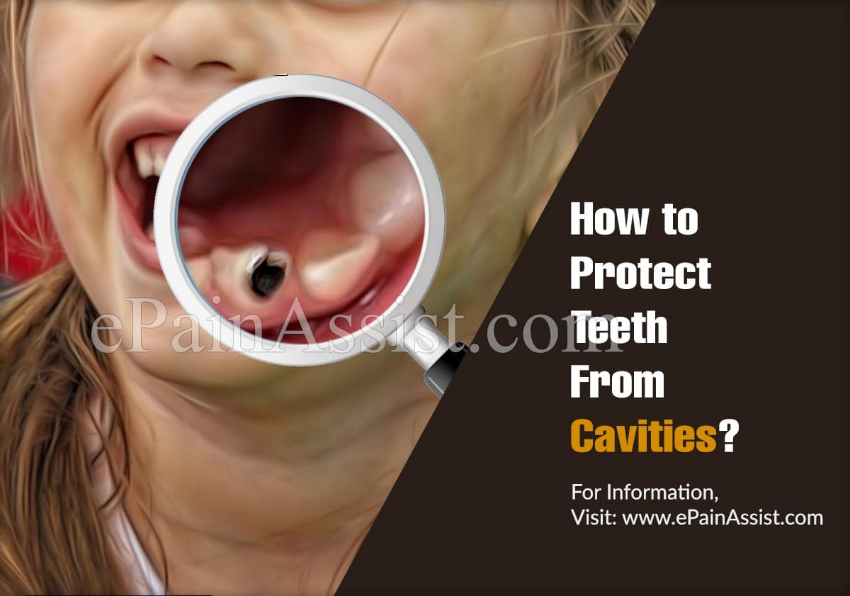 How to Protect Teeth From Cavities?