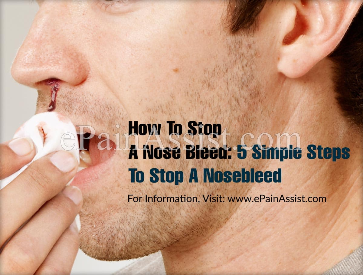 How To Stop A Nose Bleed: 5 Simple Steps To Stop A Nosebleed