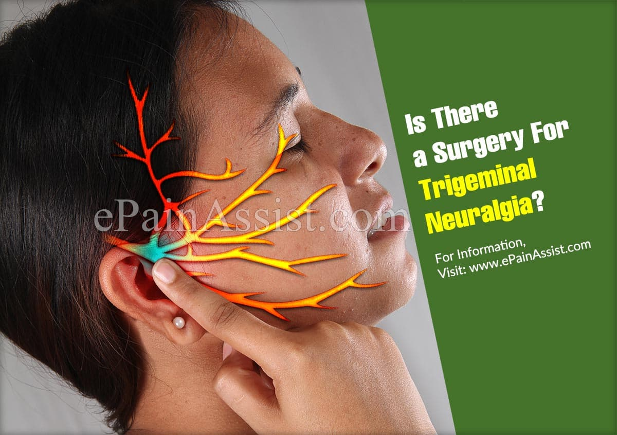 Is There a Surgery For Trigeminal Neuralgia?