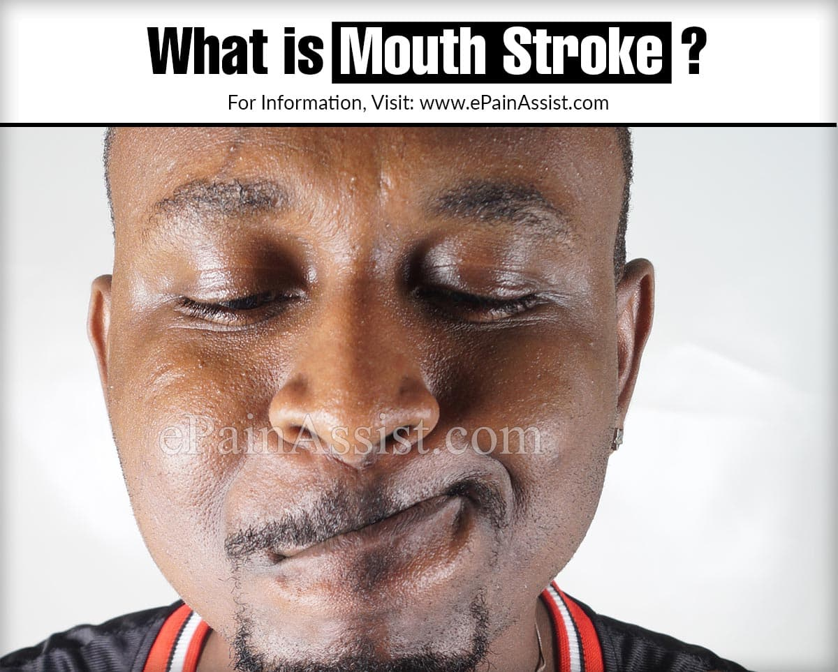 What is Mouth Stroke?