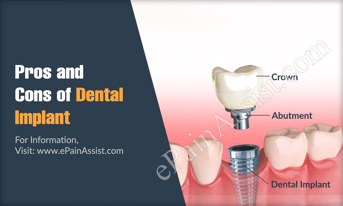 Pros and Cons of Dental Implant