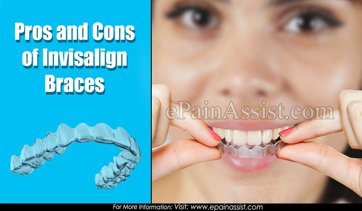 Pros and Cons of Invisalign Braces