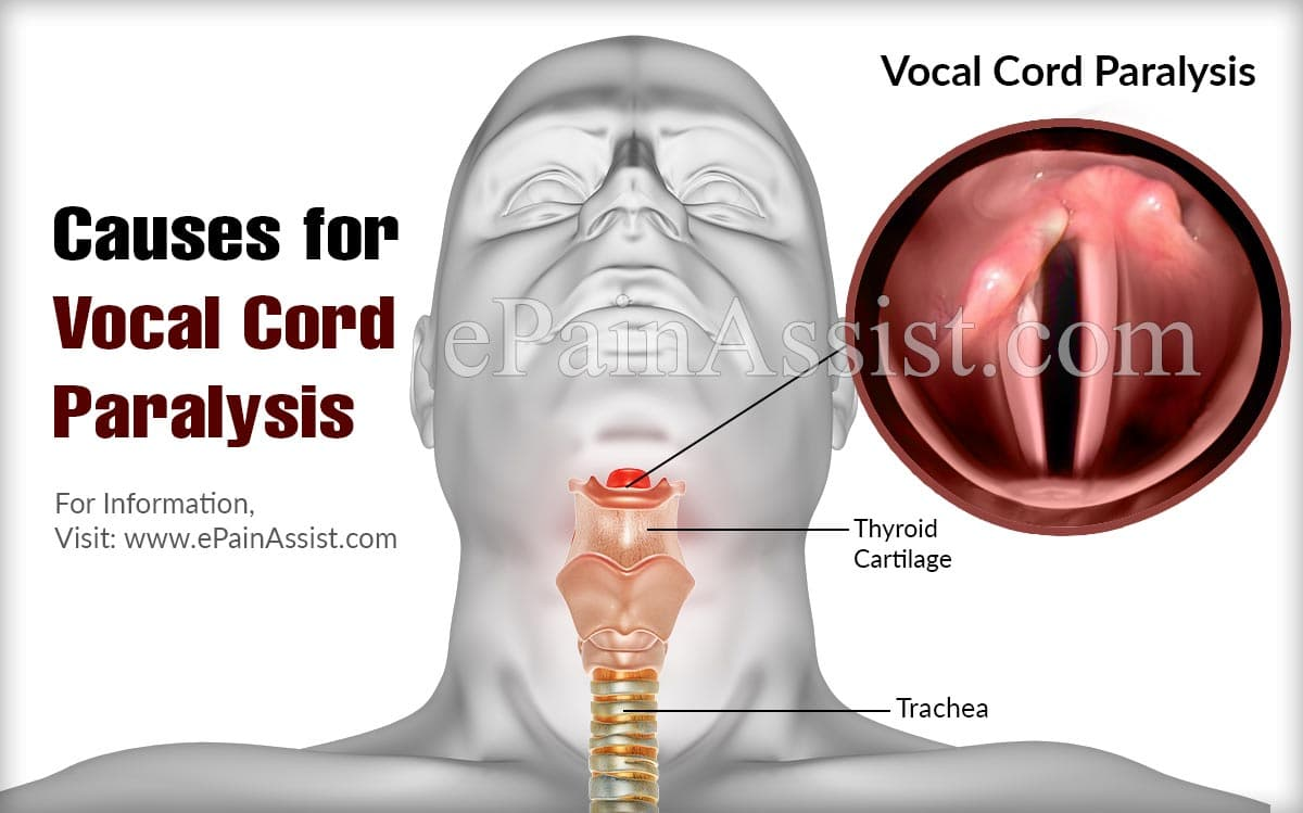 Causes for Vocal Cord Paralysis