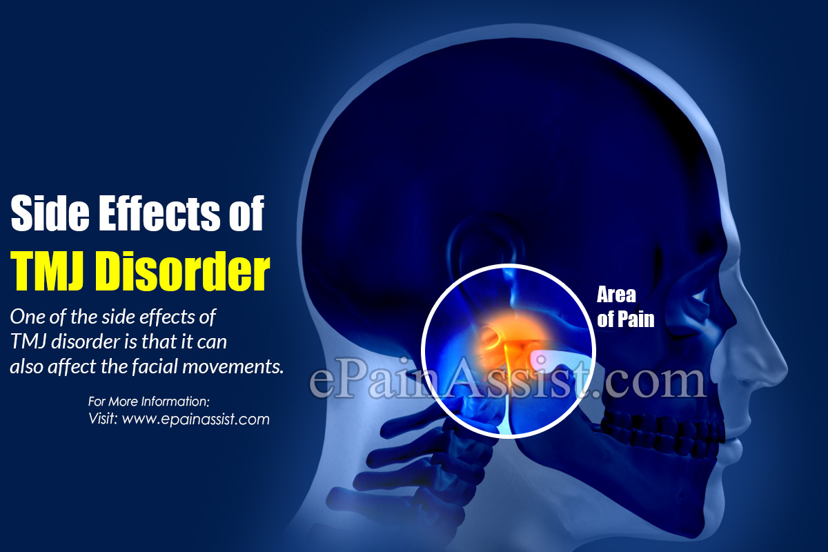 Side Effects of TMJ Disorder