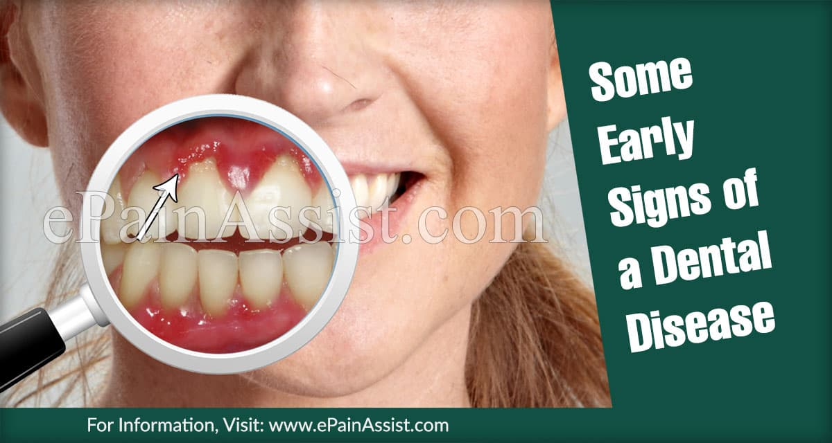 Some Early Signs of a Dental Disease