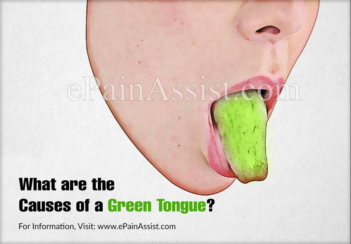 What are the Causes of a Green Tongue?