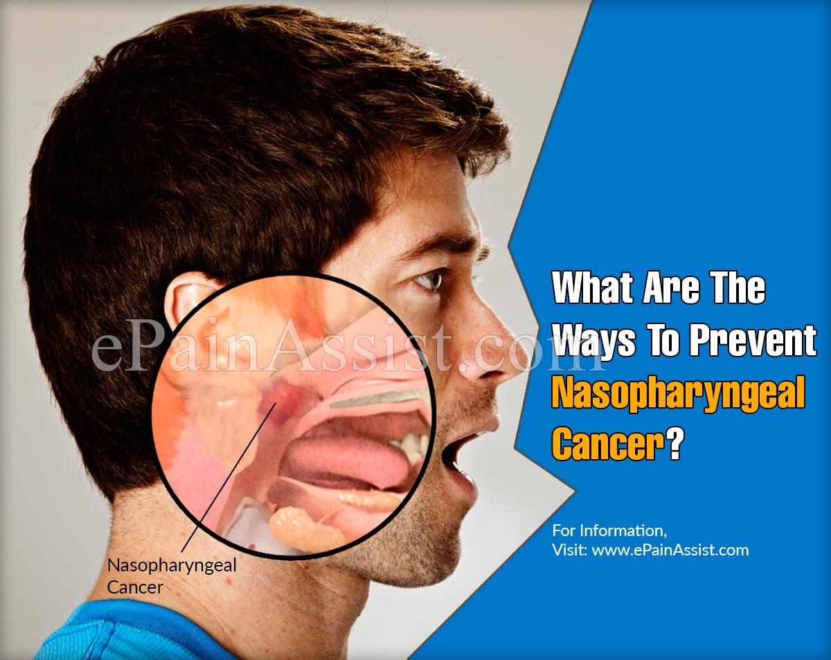 What Are The Ways To Prevent Nasopharyngeal Cancer?