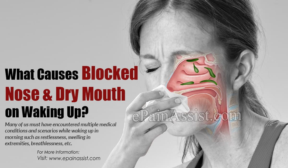 What Causes Blocked Nose & Dry Mouth on Waking Up?