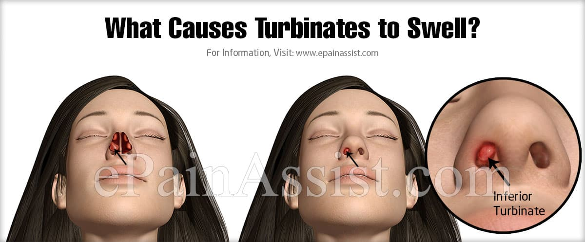 What Causes Turbinates to Swell?
