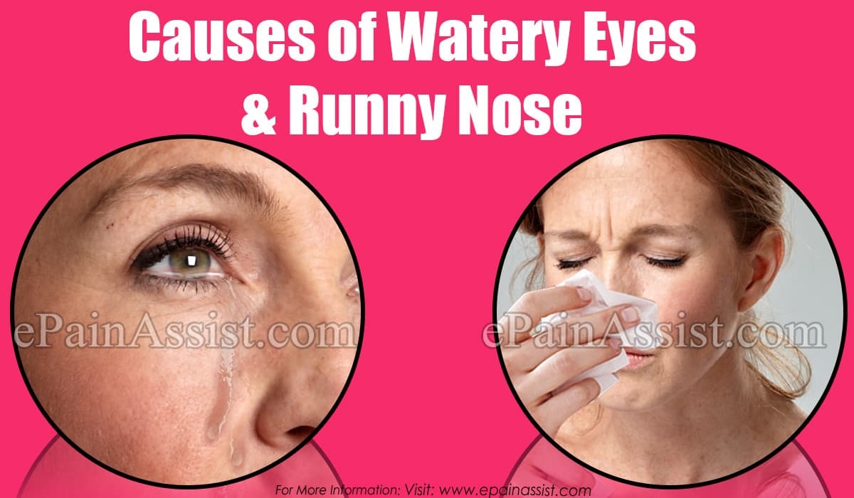 Causes of Watery Eyes & Runny Nose