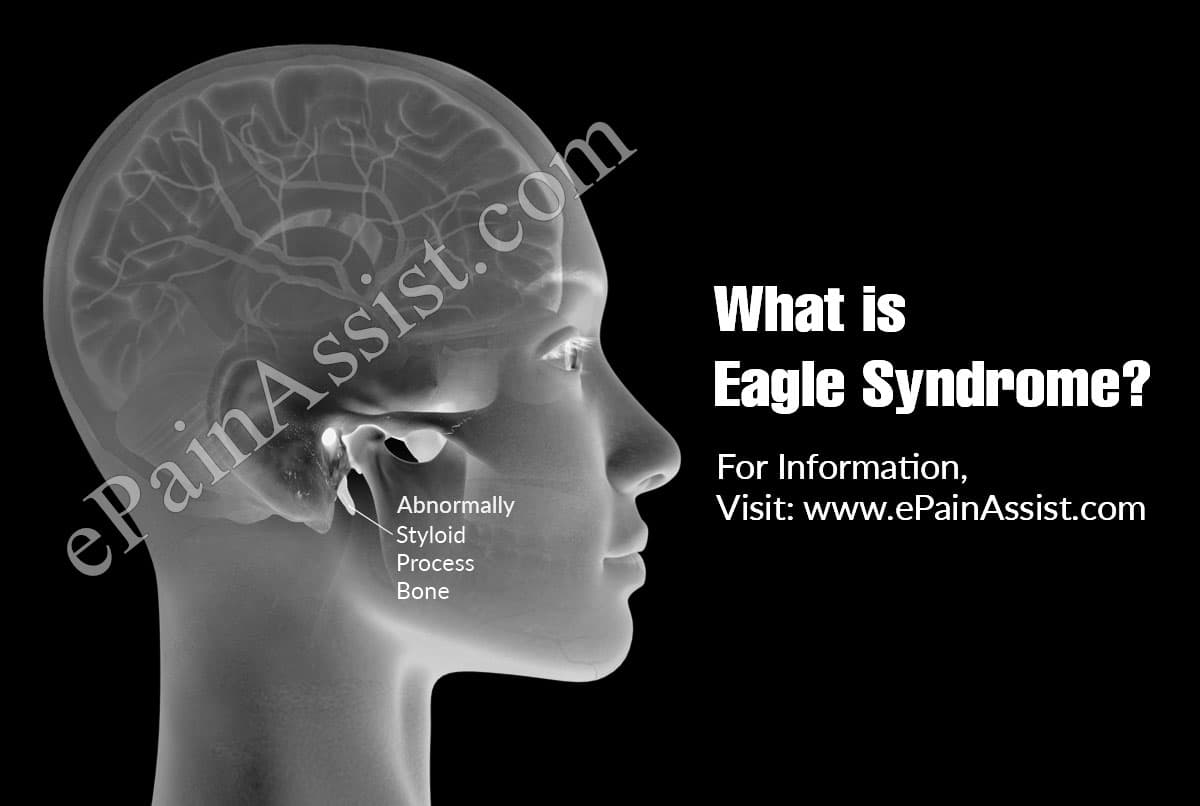 What is Eagle Syndrome?