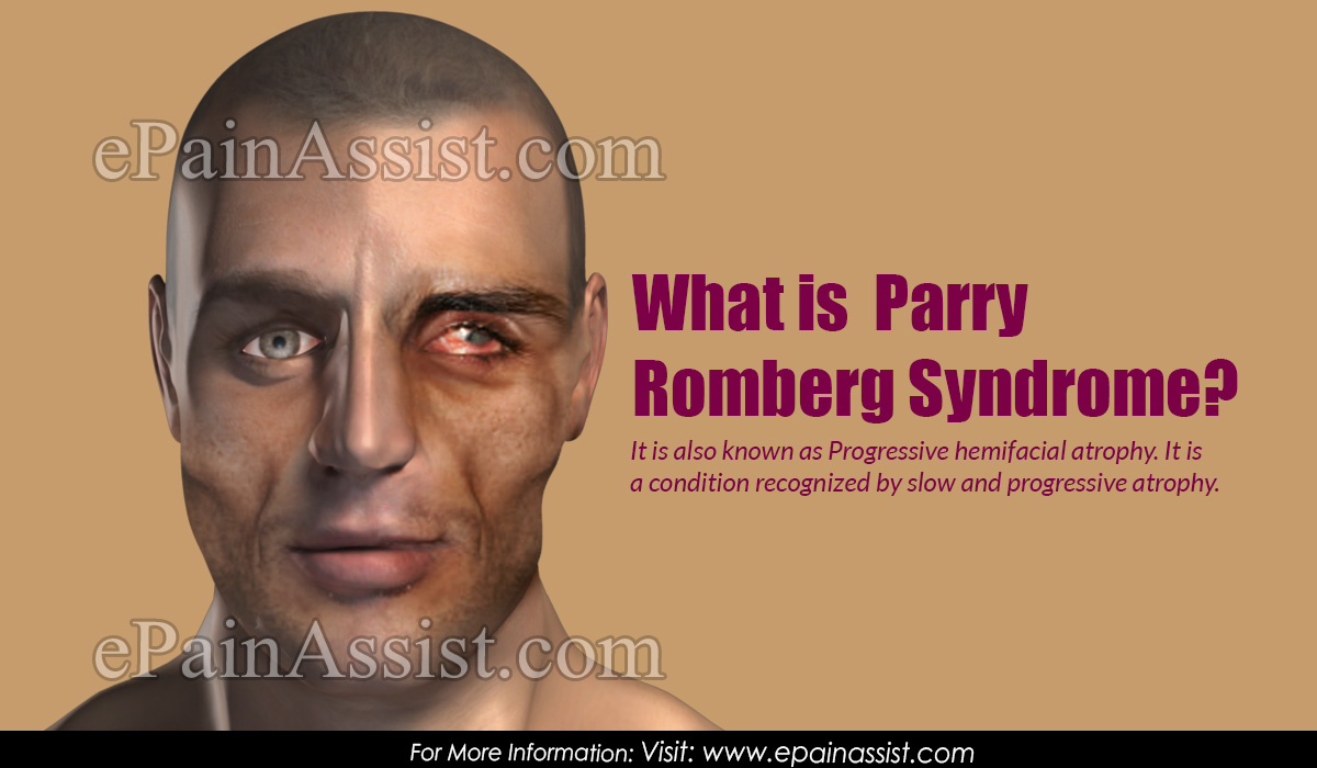 What is Parry Romberg Syndrome|Causes|Symptoms|Treatment