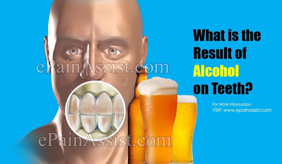 What is the Result of Alcohol on Teeth?