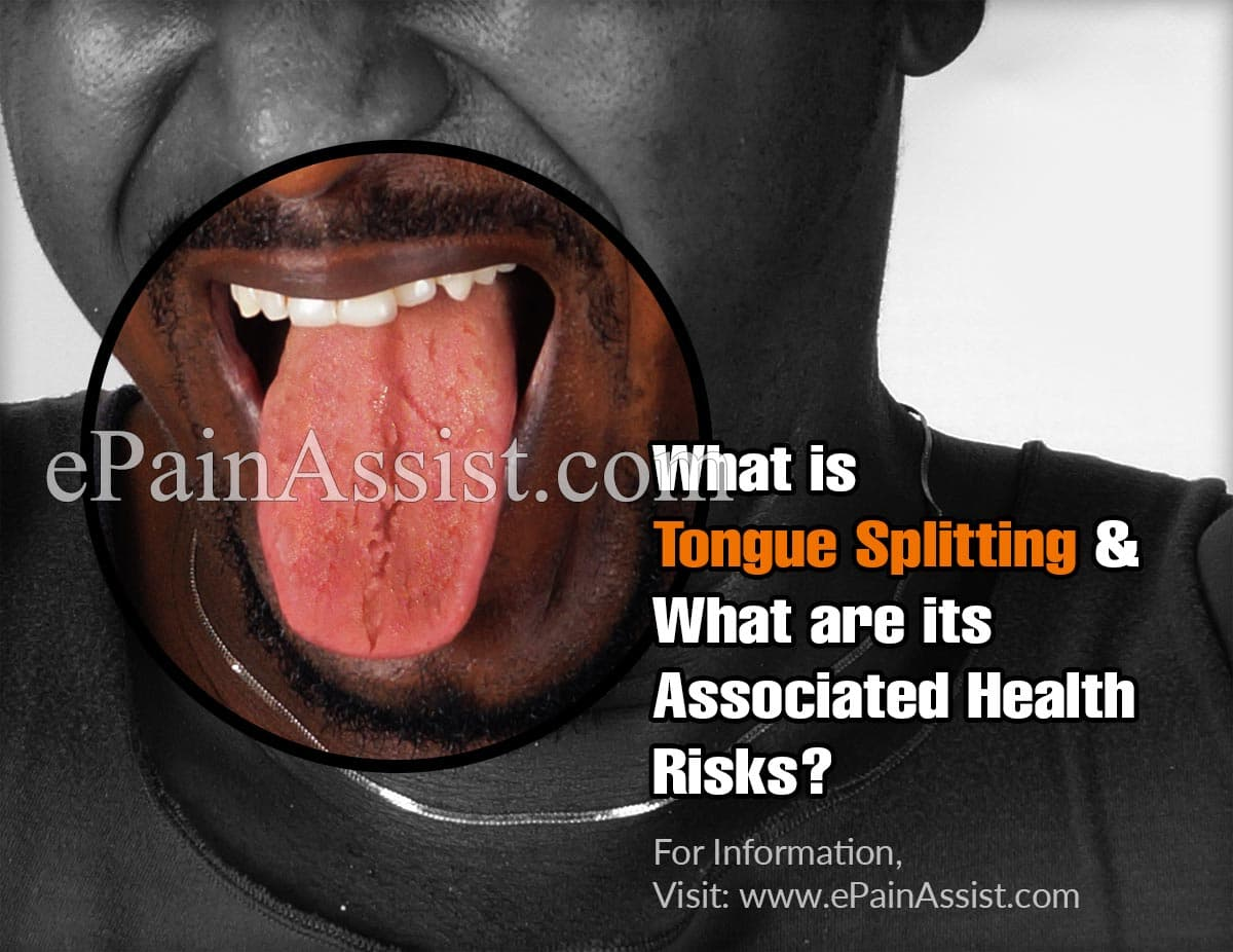 What is Tongue Splitting & What are its Associated Health Risks?