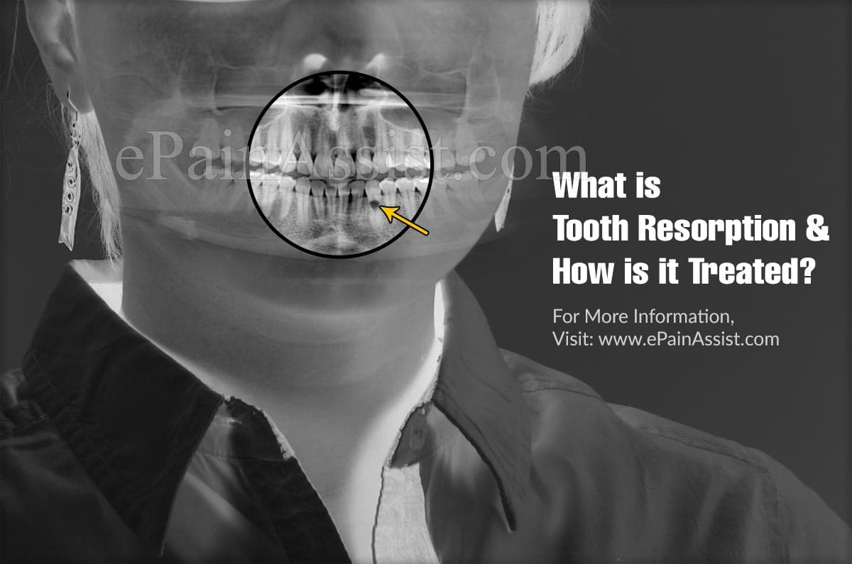 What is Tooth Resorption & How is it Treated?