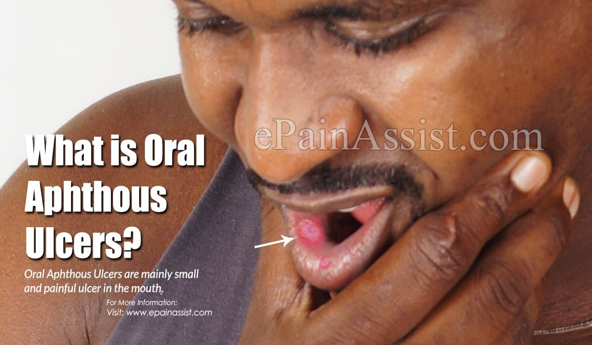 What is Oral Aphthous Ulcers?