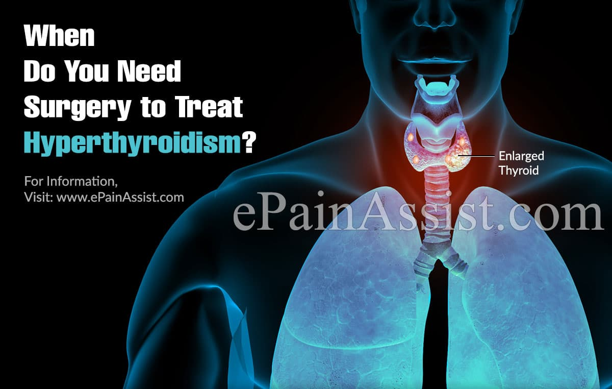 When Do You Need Surgery to Treat Hyperthyroidism?