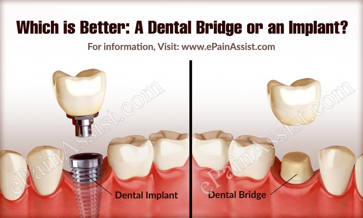 Which is Better: A Dental Bridge or an Implant?