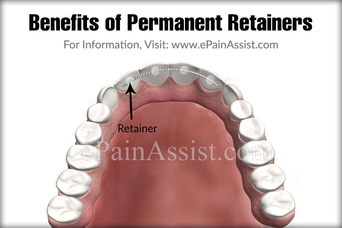 Benefits of Permanent Retainers