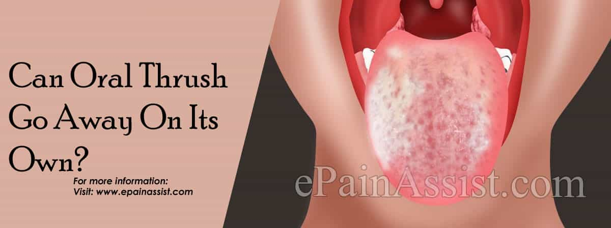 Can Oral Thrush Go Away On Its Own?