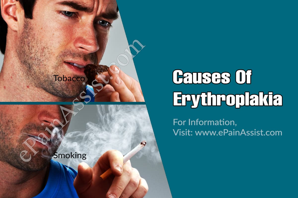 Causes Of Erythroplakia