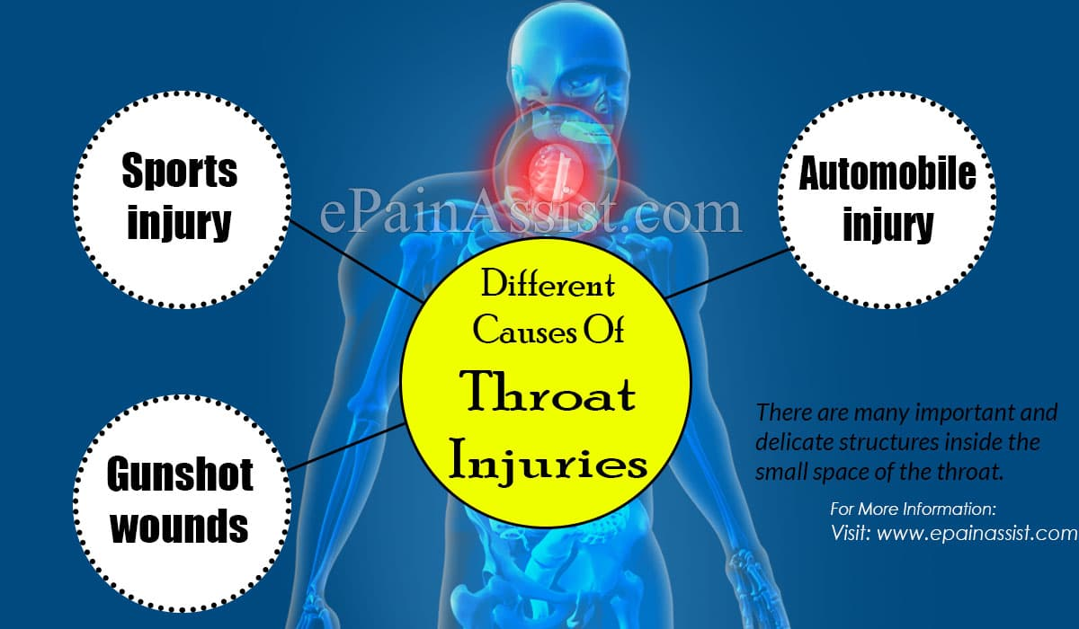 Different Causes Of Throat Injuries