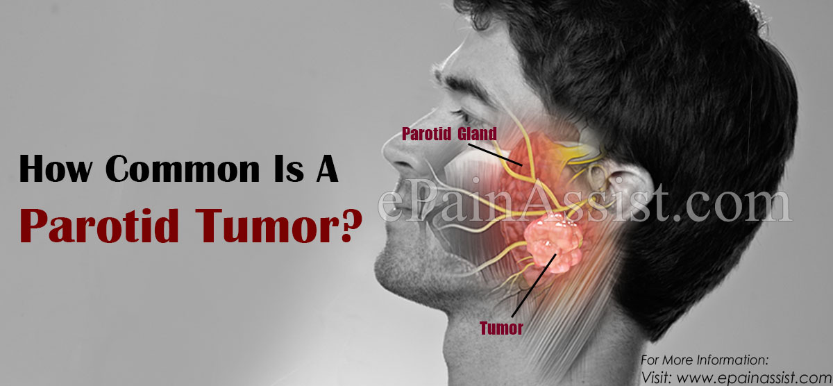 How Common Is A Parotid Tumor?
