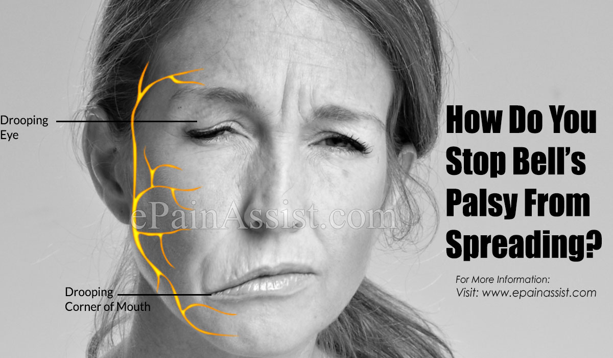 How To Stop Bell's Palsy From Spreading?