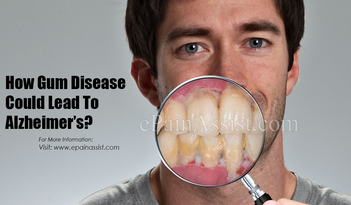How Gum Disease Could Lead To Alzheimer's?