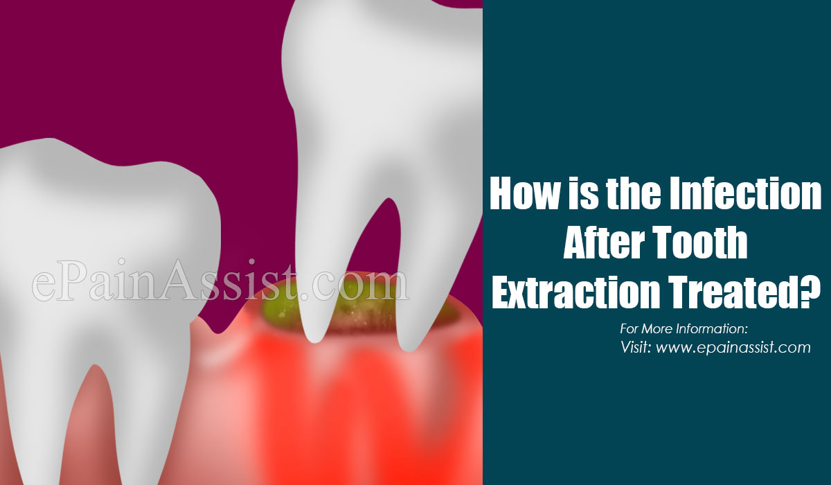 How is the Infection After Tooth Extraction Treated?