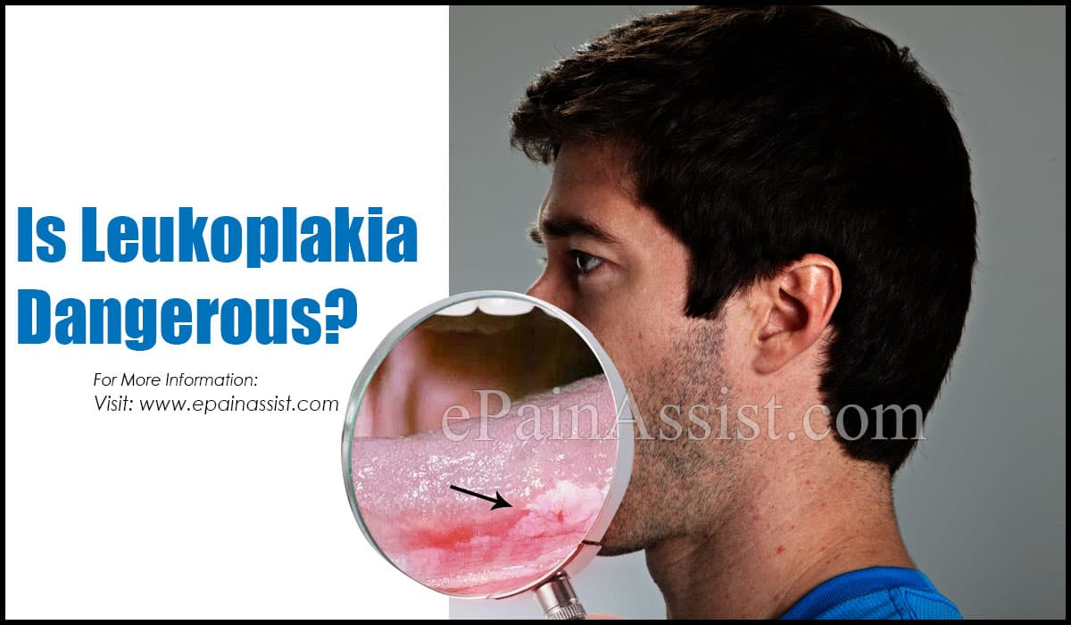 Is Leukoplakia Dangerous?