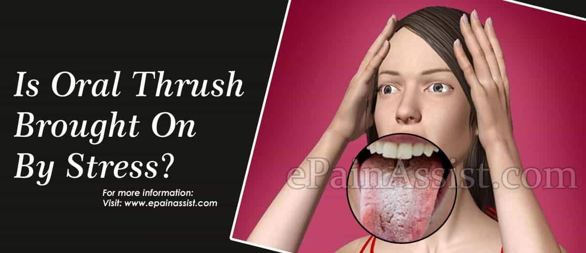 Is Oral Thrush Brought On By Stress?