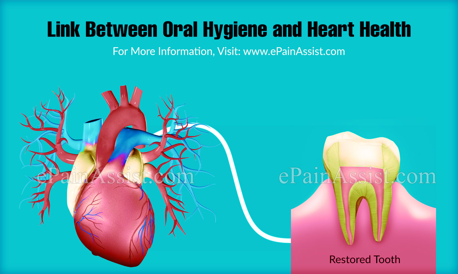 Link Between Oral Hygiene and Heart Health