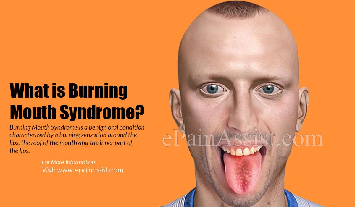 What is Burning Mouth Syndrome?