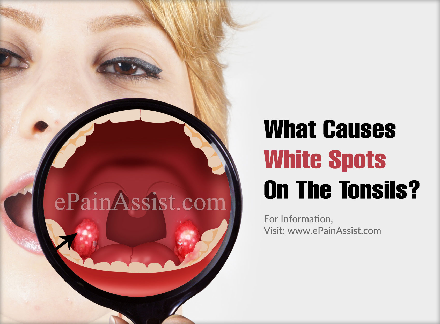 What Causes White Spots On The Tonsils?