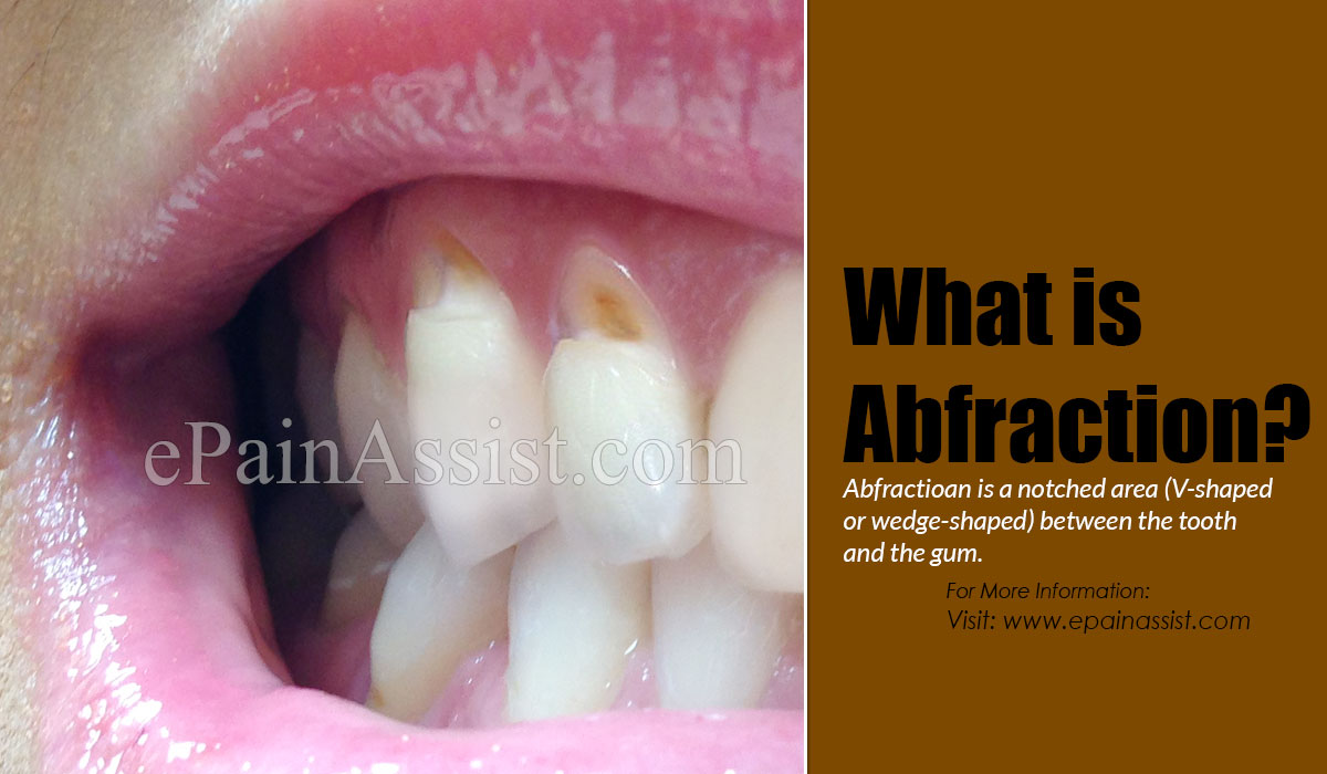 What is Abfraction?