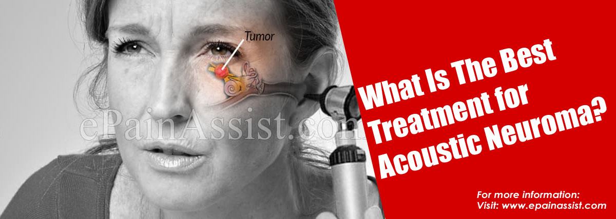What Is The Best Treatment for Acoustic Neuroma?