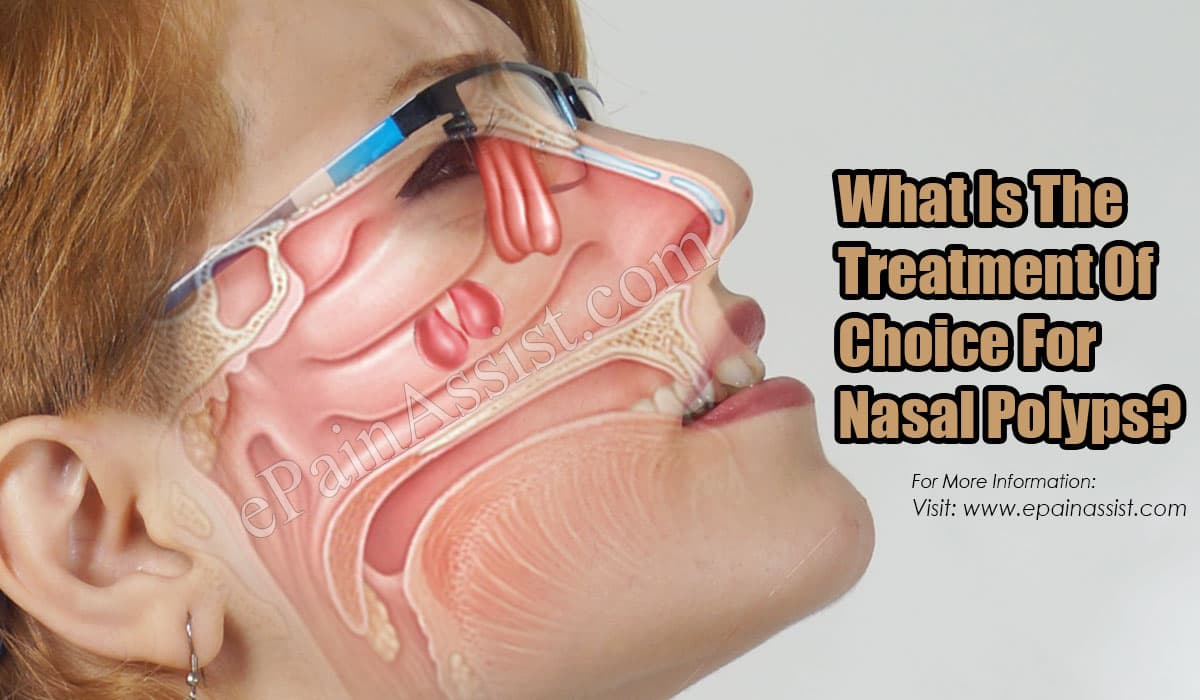 What Is The Treatment Of Choice For Nasal Polyps?
