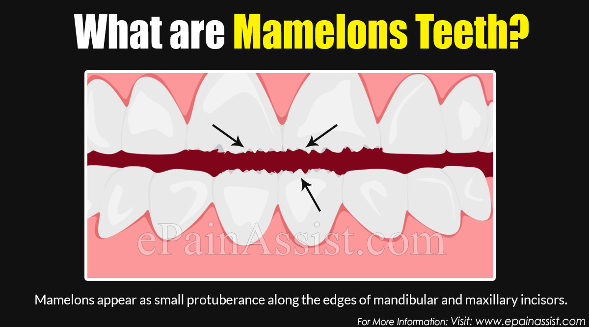 What are Mamelons Teeth?