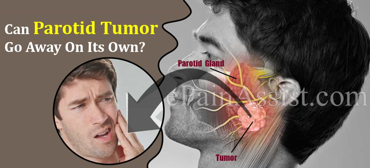 Can Parotid Tumor Go Away On Its Own